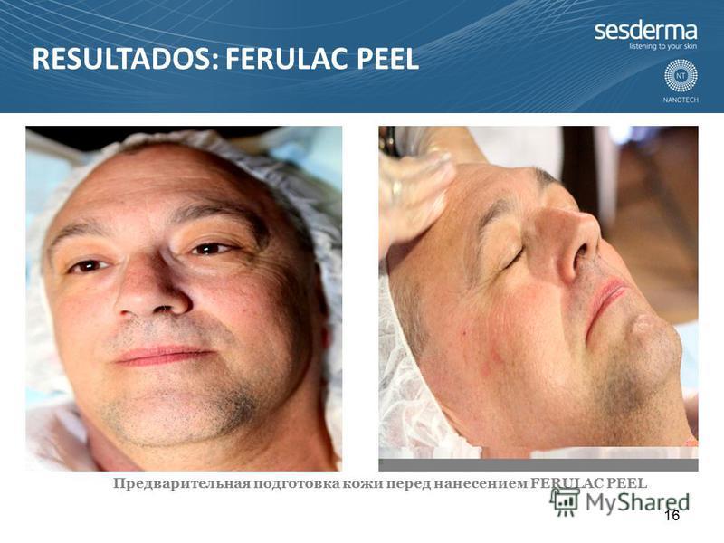 RESULTADOS: FERULAC PEEL Предварительная подготовка кожи перед нанесением FERULAC PEEL 16