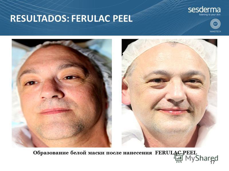 Образование белой маски после нанесения FERULAC PEEL 17 RESULTADOS: FERULAC PEEL