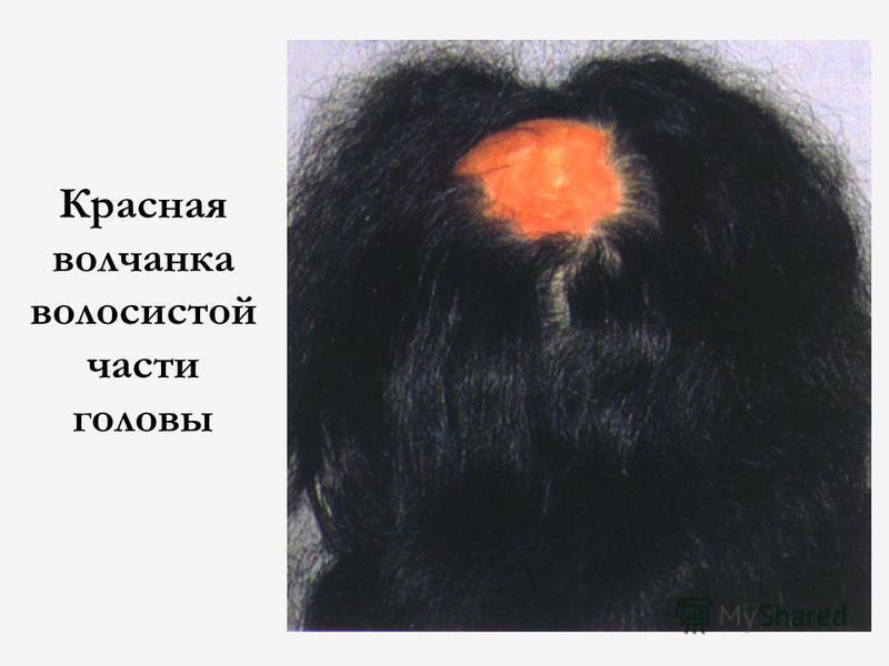 Красная волчанка волосистой части головы