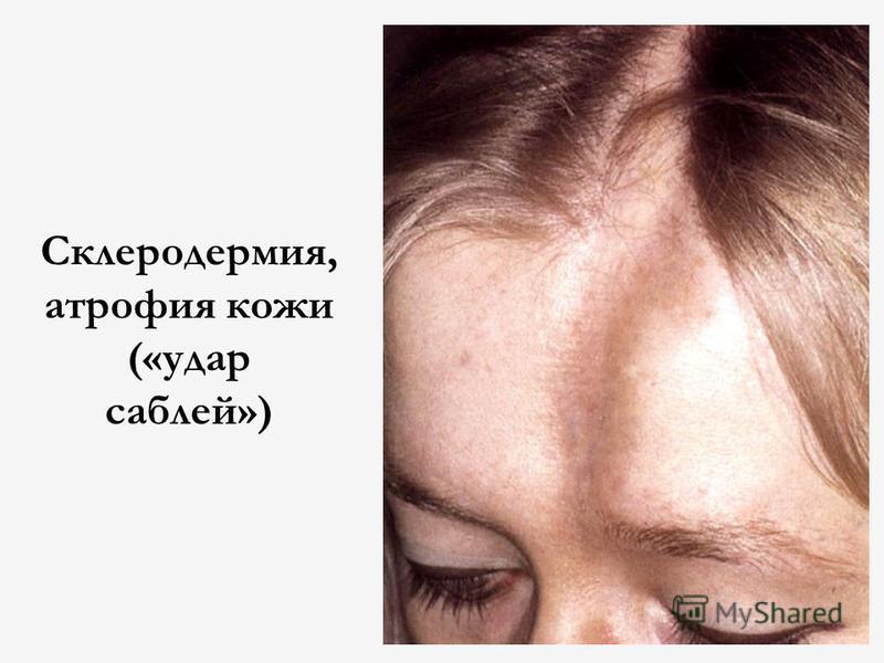 Склеродермия, атрофия кожи («удар саблей»)