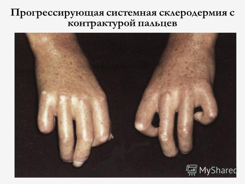 Прогрессирующая системная склеродермия с контрактурой пальцев