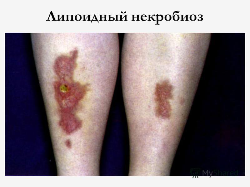 Липоидный некробиоз