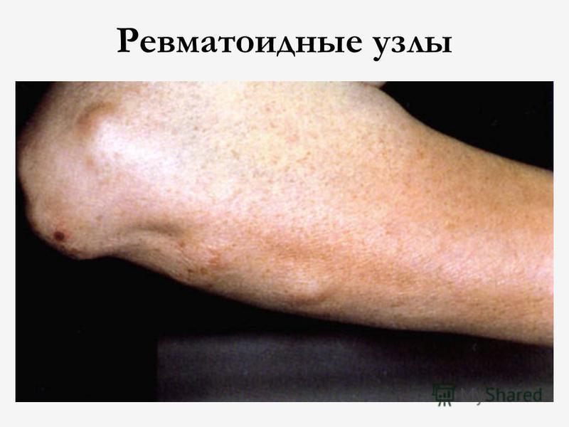 Ревматоидные узлы