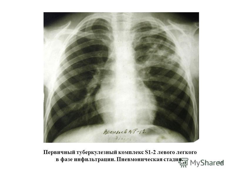 16 Первичный туберкулезный комплекс S1-2 левого легкого в фазе инфильтрации. Пневмоническая стадия.