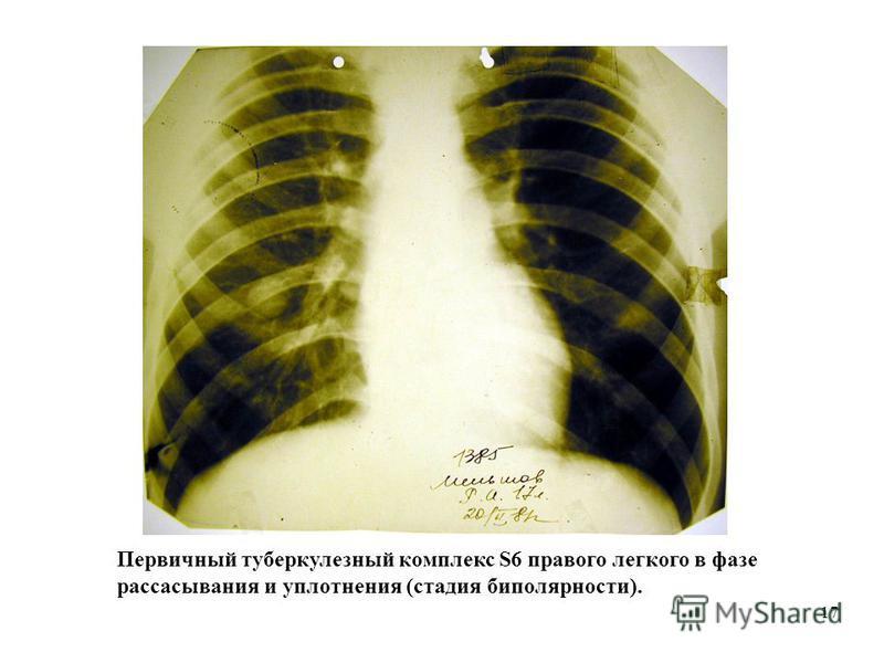 17 Первичный туберкулезный комплекс S6 правого легкого в фазе рассасывания и уплотнения (стадия биполярности).
