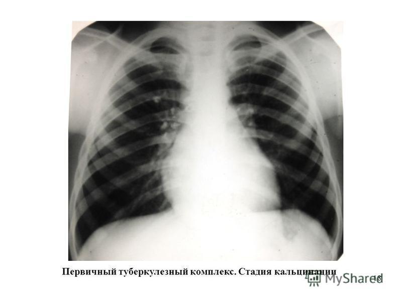 18 Первичный туберкулезный комплекс. Стадия кальцинации