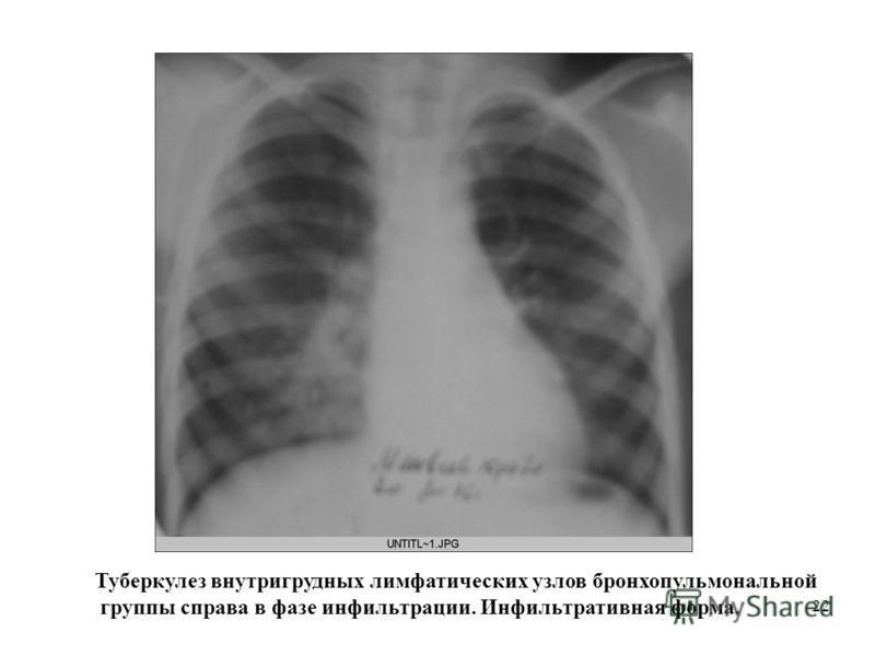 22 Туберкулез внутригрудных лимфатических узлов бронхопульмональной группы справа в фазе инфильтрации. Инфильтративная форма.