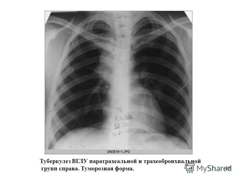 23 Туберкулез ВГЛУ паратрахеальной и трахеобронхиальной групп справа. Туморозная форма.