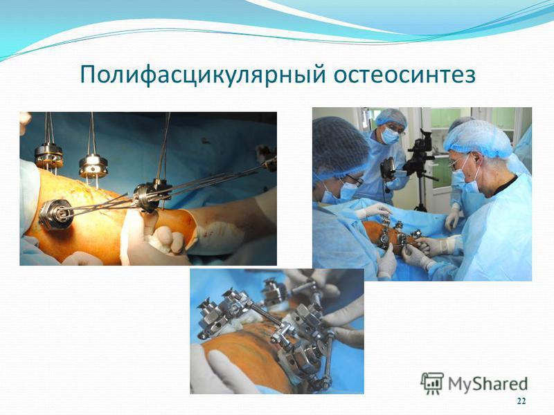 Полифасцикулярный остеосинтез 22