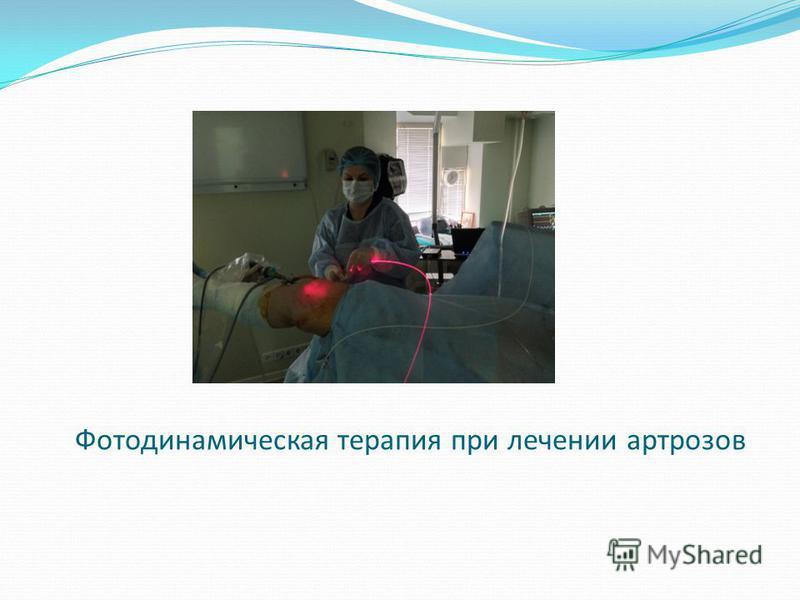 Фотодинамическая терапия при лечении артрозов