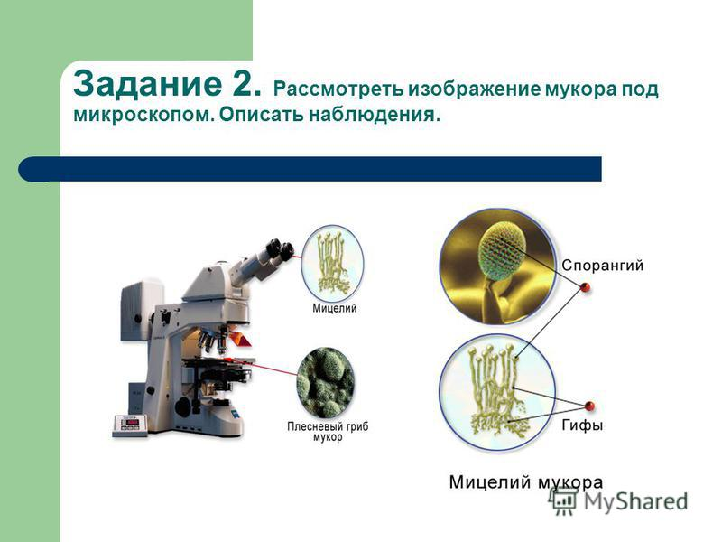 Задание 2. Рассмотреть изображение мукора под микроскопом. Описать наблюдения.