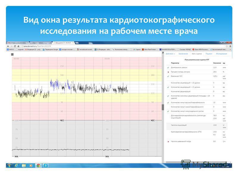 Вид окна результата кардиотокографического исследования на рабочем месте врача