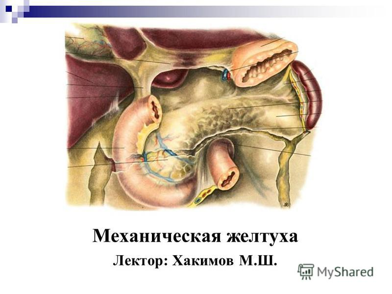Механическая желтуха Лектор: Хакимов М.Ш.