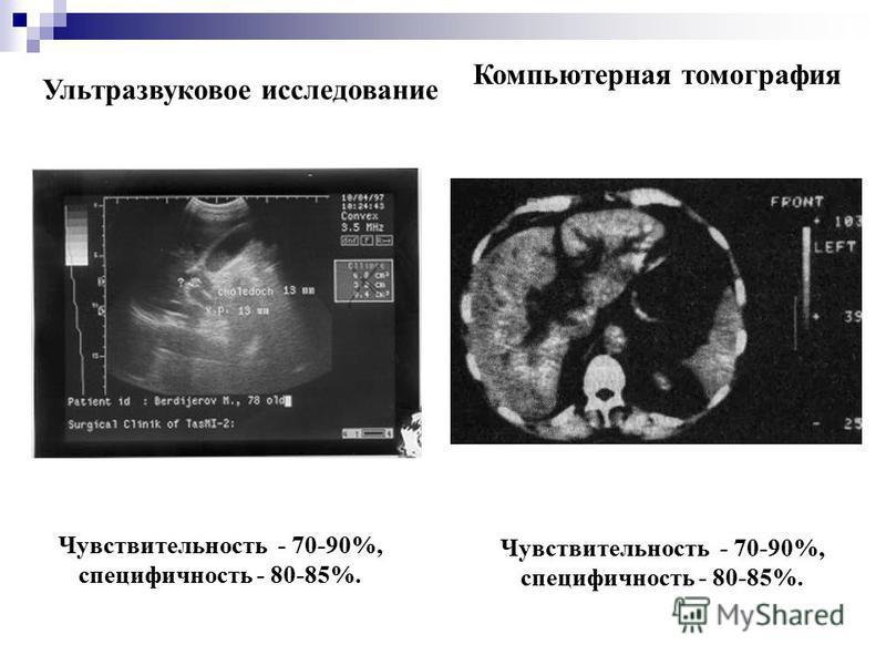 Ультразвуковое исследование Чувствительность - 70-90%, специфичность - 80-85%. Компьютерная томография Чувствительность - 70-90%, специфичность - 80-85%.