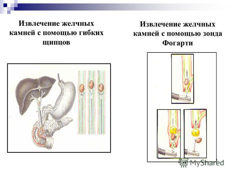 Извлечение желчных камней с помощью гибких щипцов Извлечение желчных камней с помощью зонда Фогарти
