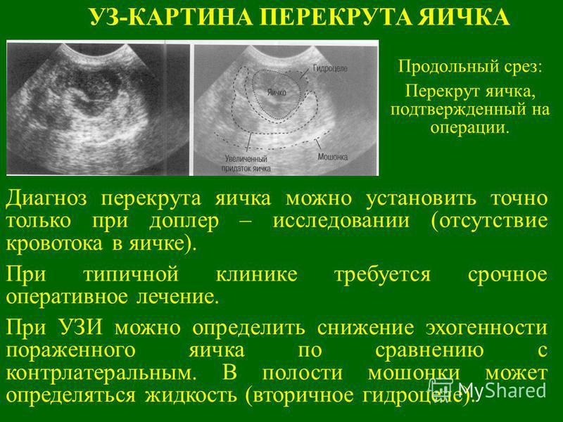 УЗ-КАРТИНА ПЕРЕКРУТА ЯИЧКА Продольный срез: Перекрут яичка, подтвержденный на операции. Диагноз перекрута яичка можно установить точно только при доплер – исследовании (отсутствие кровотока в яичке). При типичной клинике требуется срочное оперативное