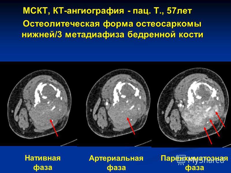 МСКТ, КТ-ангиография - пас. Т., 57 лет МСКТ, КТ-ангиография - пас. Т., 57 лет Остеолитеческая форма остеосаркомы нижней/3 метадиафиза бедренной кости Остеолитеческая форма остеосаркомы нижней/3 метадиафиза бедренной кости Нативная фаза Артериальная ф