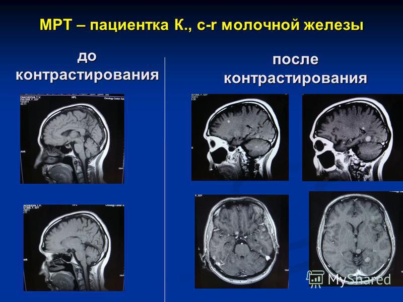 МРТ – пасиентка К., с-r молочной железы до контрастирования после контрастирования