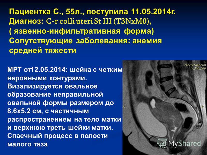 Пациентка С., 55 л., поступила 11.05.2014 г. Диагноз: C-r colli uteri St III (T3NxM0), ( язвенно-инфильтративная форма) Сопутствующие заболевания: анемия средней тяжести МРТ от 12.05.2014: шейка с четким, неровными контурами. Визализируется овальное
