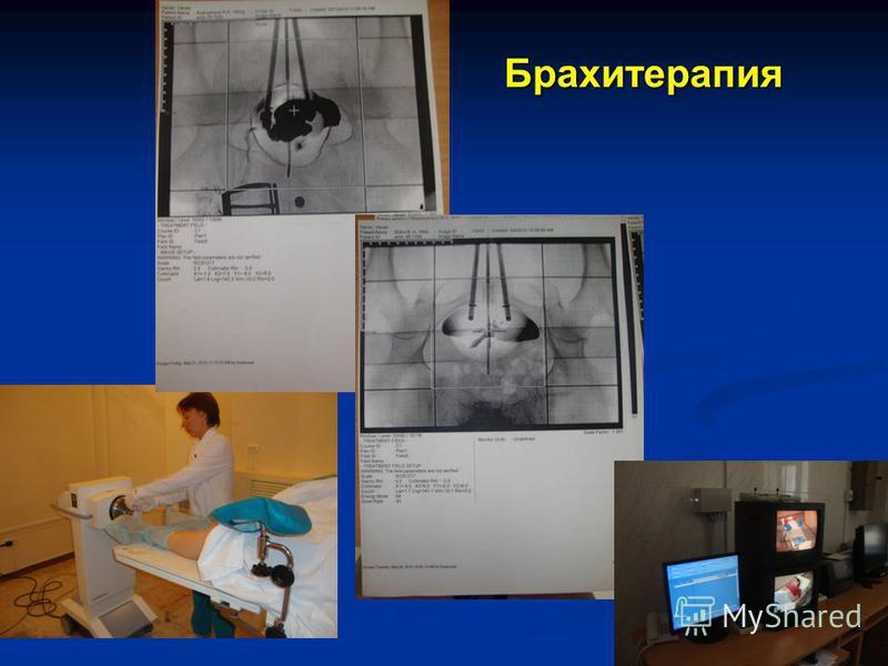Брахитерапия