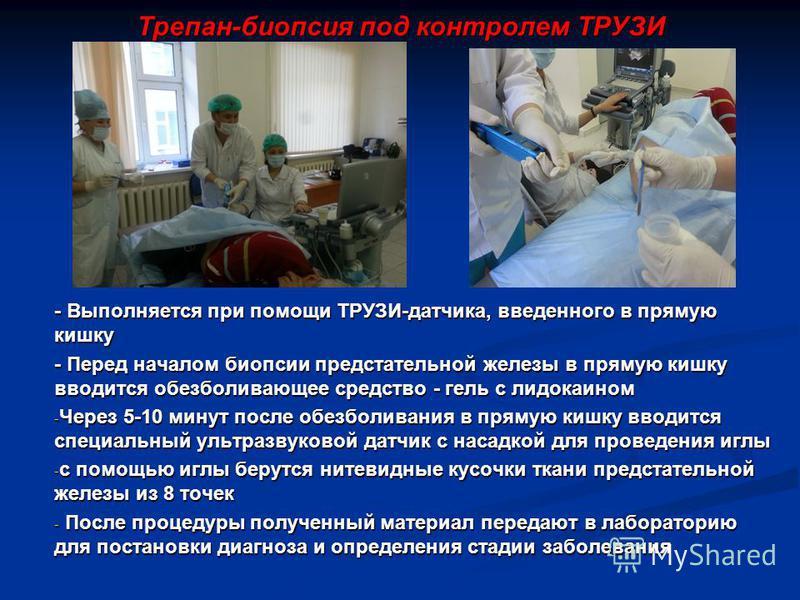 Трепан-биопсия под контролем ТРУЗИ - Выполняется при помощи ТРУЗИ-датчика, введенного в прямую кишку - Перед началом биопсии предстательной железы в прямую кишку вводится обезболивающее средство - гель с лидокаином - Через 5-10 минут после обезболива
