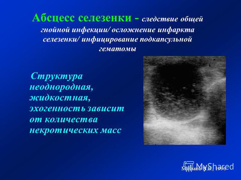 Абсцесс селезенки - следствие общей гнойной инфекции/ осложнение инфаркта селезенки/ инфицирование подкапсульной гематомы Структура неоднородная, жидкостная, эхогенность зависит от количества некротических масс Митьков В.В., 1996