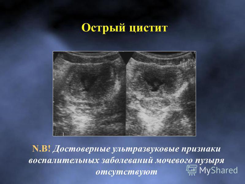 Острый цистит N.B! Достоверные ультразвуковые признаки воспалительных заболеваний мочевого пузыря отсутствуют