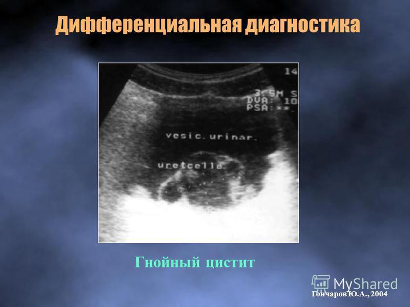 Гнойный цистит Дифференциальная диагностика Гончаров Ю.А., 2004