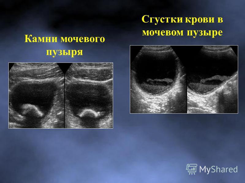 Камни мочевого пузыря Сгустки крови в мочевом пузыре