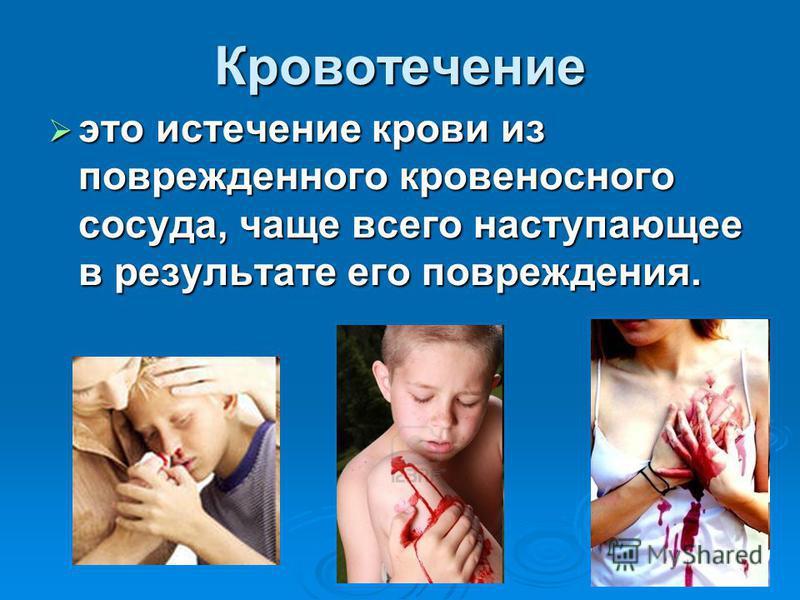 Кровотечение это истечение крови из поврежденного кровеносного сосуда, чаще всего наступающее в результате его повреждения. это истечение крови из поврежденного кровеносного сосуда, чаще всего наступающее в результате его повреждения.