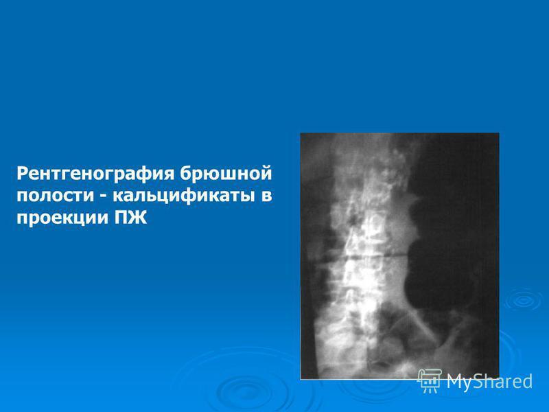 Рентгенография брюшной полости - кальцификаты в проекции ПЖ