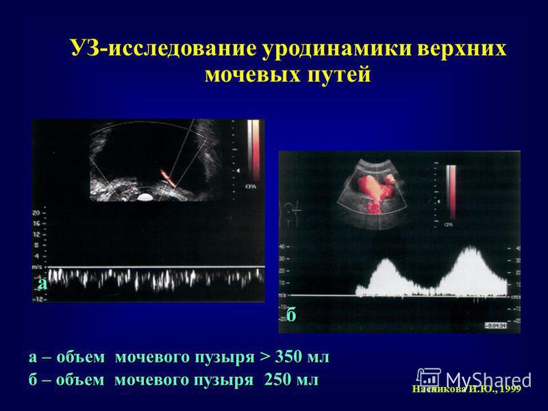 УЗ-исследование уродинамики верхних мочевых путей Насникова И.Ю., 1999 а – объем мочевого пузыря > 350 мл б – объем мочевого пузыря 250 мл а б