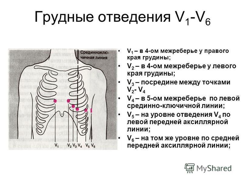 Грудные отведения V 1 -V 6 V 1 – в 4-ом межреберье у правого края грудины; V 2 – в 4-ом межреберье у левого края грудины; V 3 – посредине между точками V 2 - V 4 V 4 – в 5-ом межреберье по левой срединно-ключичной линии; V 5 – на уровне отведения V 4