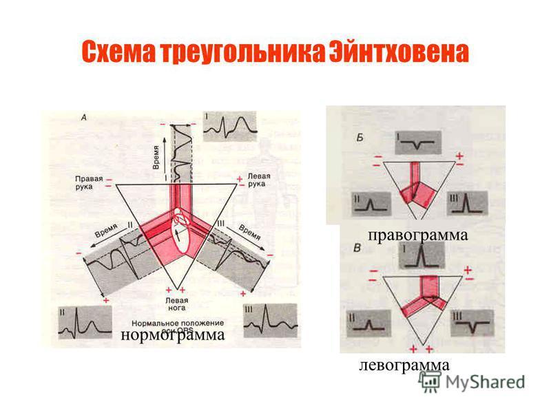 Схема треугольника Эйнтховена правограмма левограмма номограмма