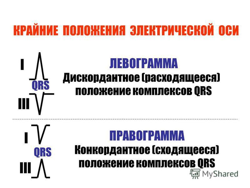 КРАЙНИЕ ПОЛОЖЕНИЯ ЭЛЕКТРИЧЕСКОЙ ОСИ QRS I III QRS I III ЛЕВОГРАММА Дискордантное (расходящееся) положение комплексов QRS ПРАВОГРАММА Конкордантное (сходящееся) положение комплексов QRS