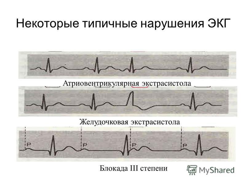 Некоторые типичные нарушения ЭКГ Атриовентрикулярная экстрасистола Желудочковая экстрасистола Блокада III степени
