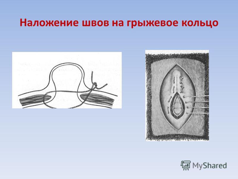 Наложение швов на грыжевое кольцо
