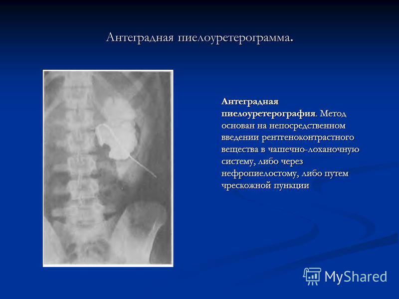Антеградная пиелоуретерограмма. Антеградная пиелоуретерография. Метод основан на непосредственном введении рентгеноконтрастного вещества в чашечно-лоханочную систему, либо через нефропиелостому, либо путем чрескожной пункции