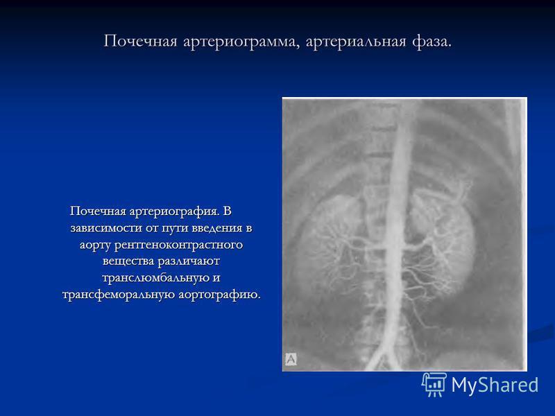 Почечная артериограмма, артериальная фаза. Почечная артериография. В зависимости от пути введения в аорту рентгеноконтрастного вещества различают транслюмбальную и трансфеморальную аортографию.