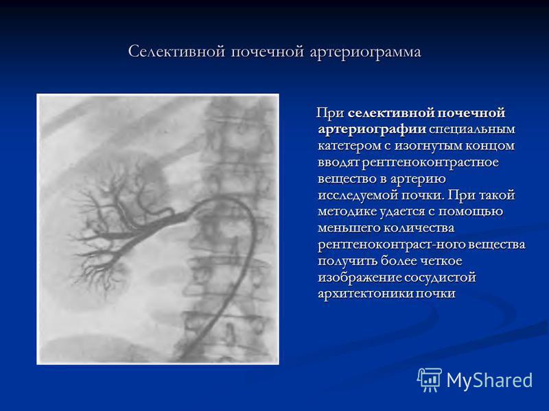 Селективной почечной артериограмма При селективной почечной артериографии специальным катетером с изогнутым концом вводят рентгеноконтрастное вещество в артерию исследуемой почки. При такой методике удается с помощью меньшего количества рентгеноконтр