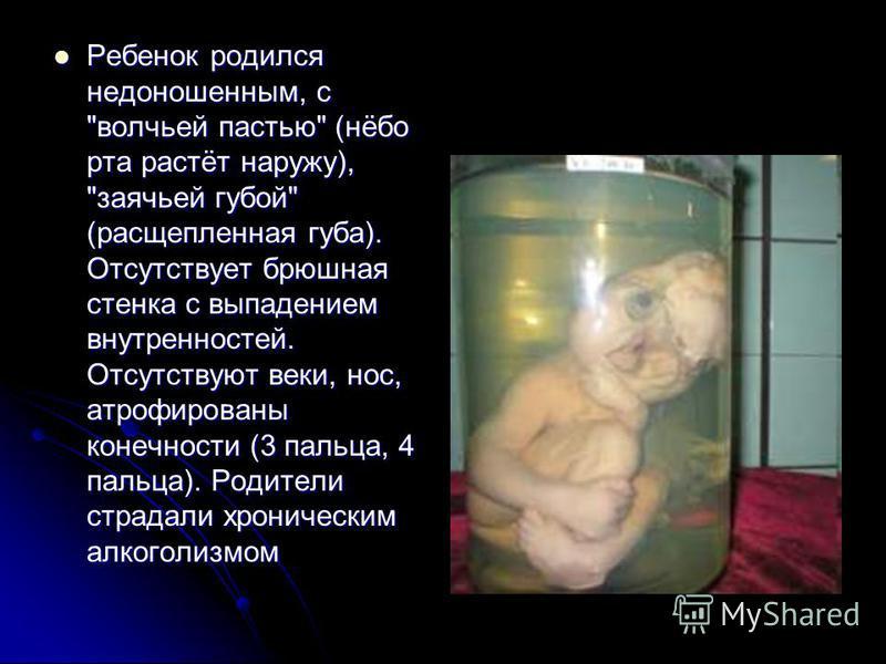 Ребенок родился недоношенным, с