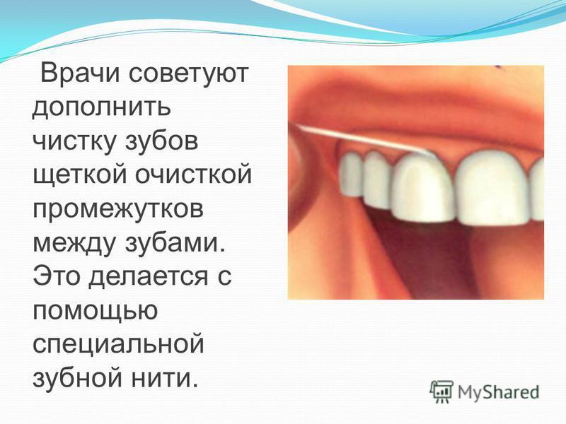 Врачи советуют дополнить чистку зубов щеткой очисткой промежутков между зубами. Это делается с помощью специальной зубной нити.