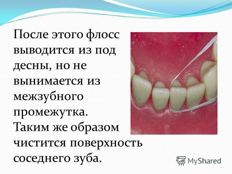 После этого флосс выводится из под десны, но не вынимается из межзубного промежутка. Таким же образом чистится поверхность соседнего зуба.
