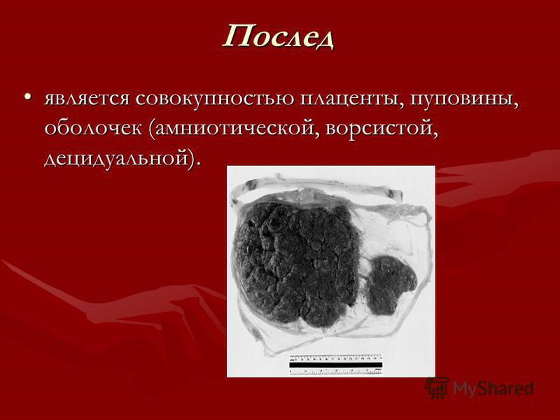 Послед является совокупностью плаценты, пуповины, оболочек (амниотической, ворсистой, децидуальной).является совокупностью плаценты, пуповины, оболочек (амниотической, ворсистой, децидуальной).