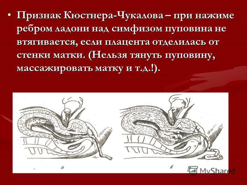 Признак Кюстнера-Чукалова – при нажиме ребром ладони над симфизом пуповина не втягивается, если плацента отделилась от стенки матки. (Нельзя тянуть пуповину, массажировать матку и т.д.!).Признак Кюстнера-Чукалова – при нажиме ребром ладони над симфиз