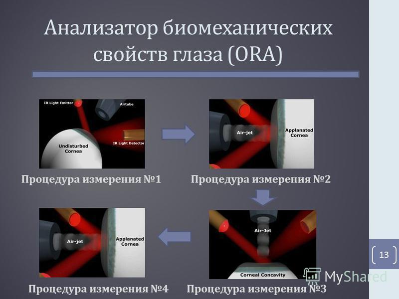 Анализатор биомеханических свойств глаза (ORA) 13 Процедура измерения 1Процедура измерения 2 Процедура измерения 3Процедура измерения 4