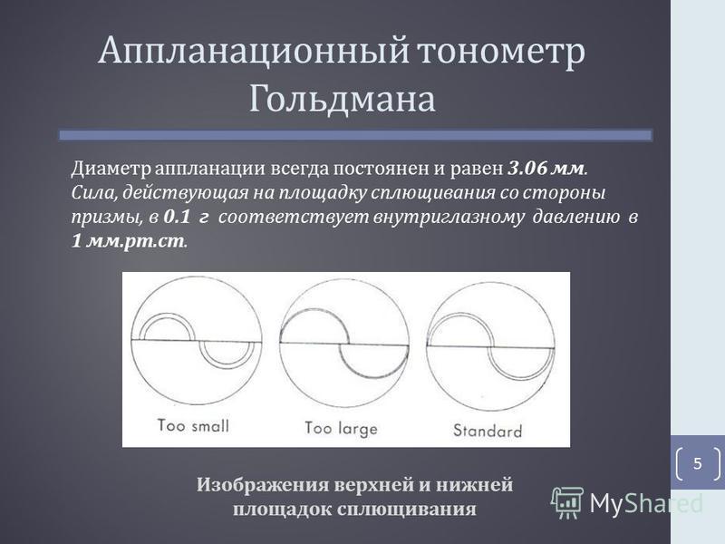 Аппланационный тонометр Гольдмана Изображения верхней и нижней площадок сплющивания 5 Диаметр аппланации всегда постоянен и равен 3.06 мм. Сила, действующая на площадку сплющивания со стороны призмы, в 0.1 г соответствует внутриглазному давлению в 1