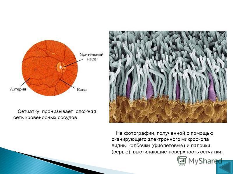На фотографии, полученной с помощью сканирующего электронного микроскопа видны колбочки (фиолетовые) и палочки (серые), выстилающие поверхность сетчатки. Сетчатку пронизывает сложная сеть кровеносных сосудов.