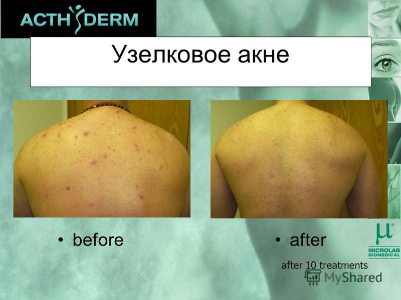Узелковое акне afterbefore after 10 treatments