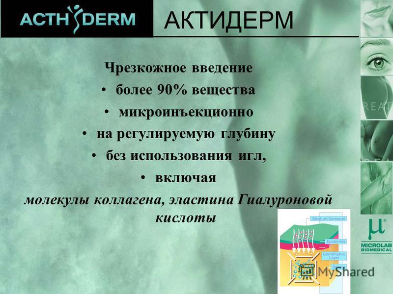 Чрезкожное введение более 90% вещества микроинъекционно на регулируемую глубину без использования игл, включая молекулы коллагена, эластина Гиалуроновой кислоты АКТИДЕРМ